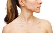 Trápí Vás akné? I v dekoltu či zádech?