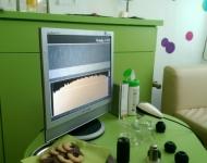 Diagnostika s přístrojem MicroCamera.