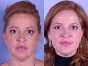 Hyperpigmentace - ilustrativní foto před a po