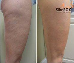 Ošetření nohou s celulitidou - ilustrativní foto