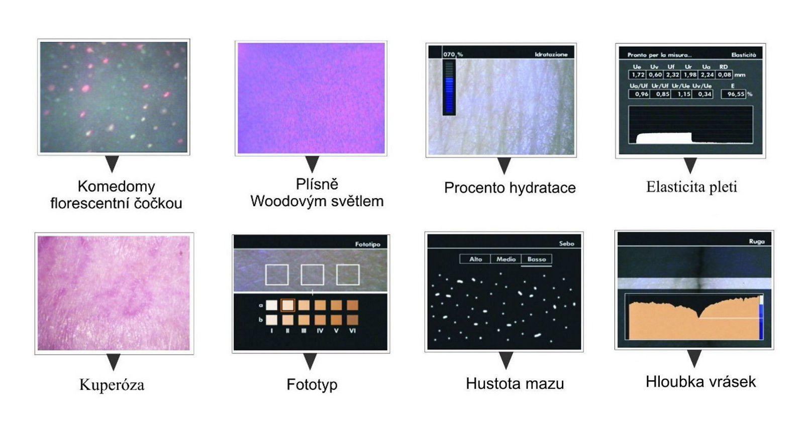 microkamera funkce