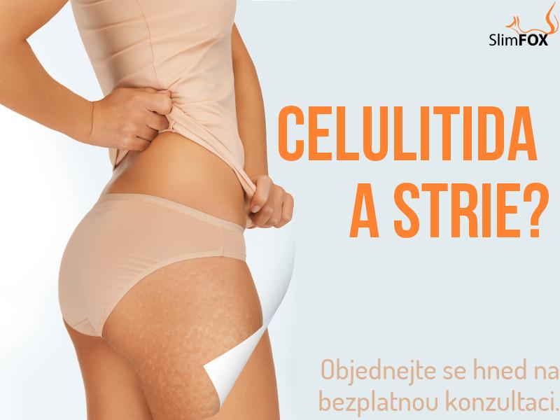 Celulitida a strie? (červen 2013)