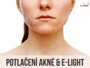 potlačení akné s ošetřením E-LIGHT
