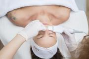 Šetrné čištění pleti ultrazvukem