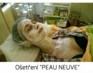 """Maska Hyperhydratant při ošetření \""""PEAU NEUVE\"""" s glukonolaktonem"""