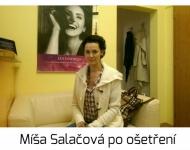 Míša Salačová a kosmetické ošetření u SlimFOX