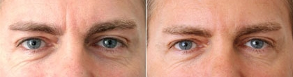 Ošetření očního okolí - ilustrativní foto